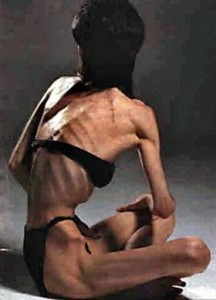 severe anorexia1